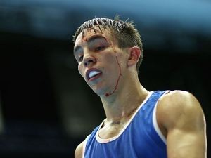 A bloody Michael Conlan of Northern Ireland after his first bout on July 25, 2014